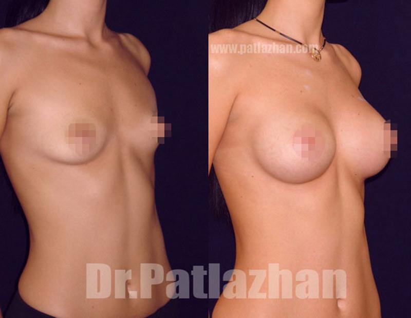 Операция на грудь на соски