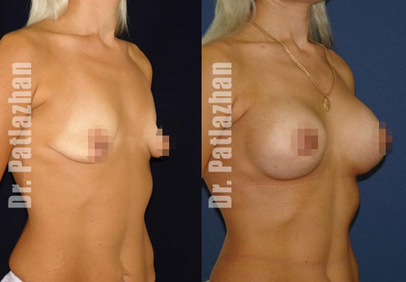 Отек груди после пластической операции