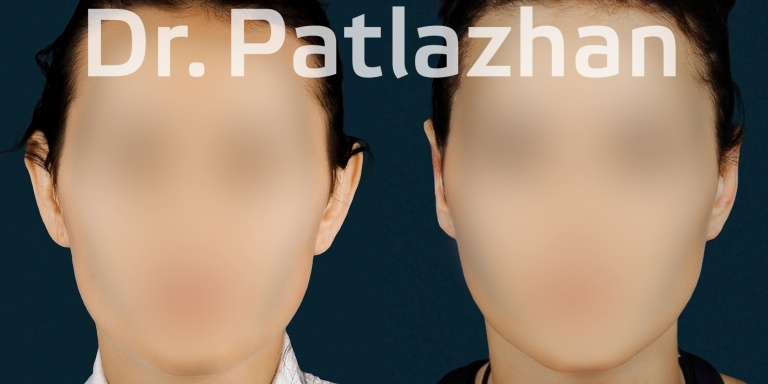 отопластика - Хирург Патлажан Г.И.