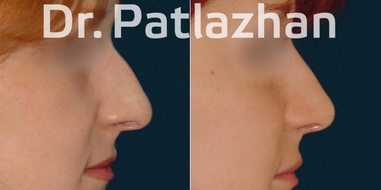 ринопластика - хирург Патлажан Г.И.